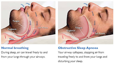Treatment for sleep apnea In Kannur,Kerala