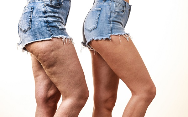 The Most Effective Ways To Get Rid Of Cellulite