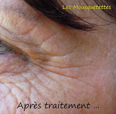 Après traitement des patchs Feelglod -Callas la Divine - Les Mousquetettes©