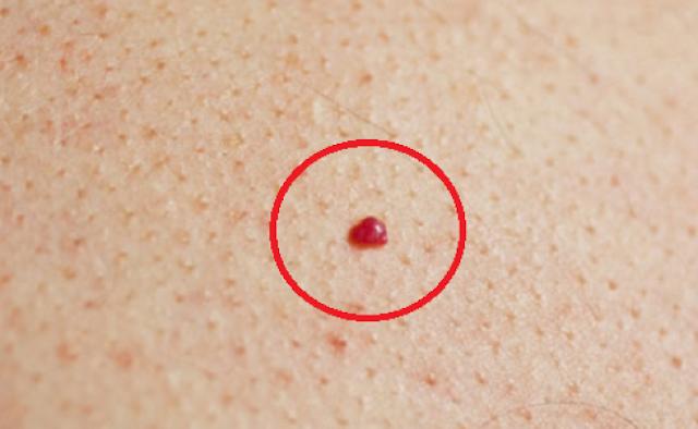 Εχετε Αυτά Τα Σημάδια Στο Δέρμα Σας; Αν ΝΑΙ Θα Έπρεπε Να Ανησυχήσετε;