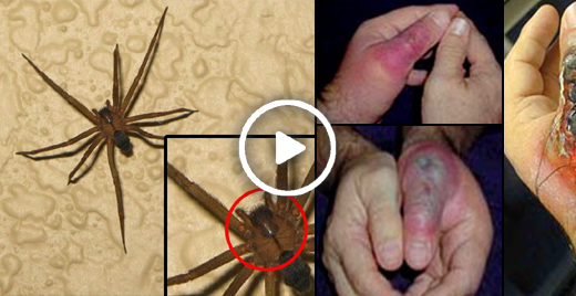 Be Alert, Keep Away From This Dangerous Spider In Mexico, Please Share