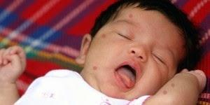 obat tradisional demam beradah untuk bayi
