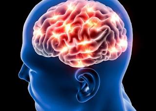 Berikut 4 Cara Pemulihan Pasca Stroke Ringan