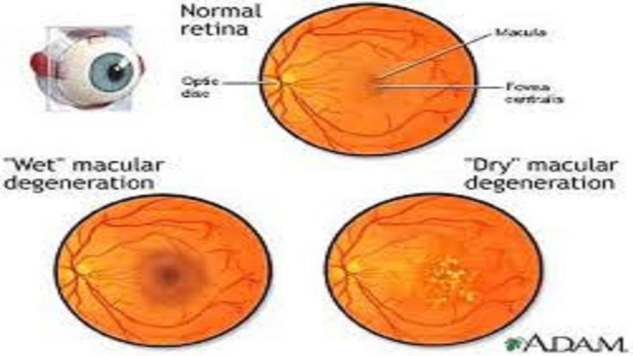 Types of Eye Diseases