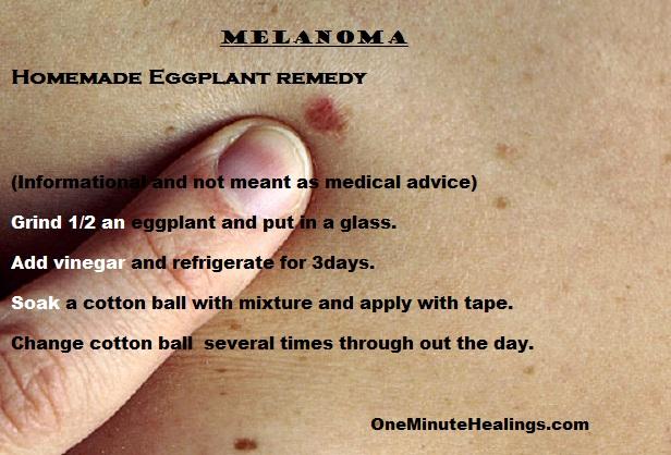 One Minute Healings