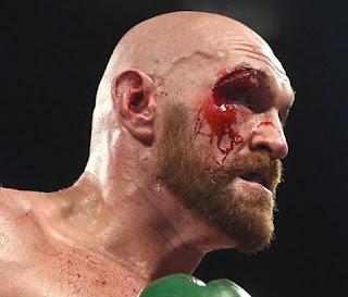Tyson Fury ESPN Contract 2020