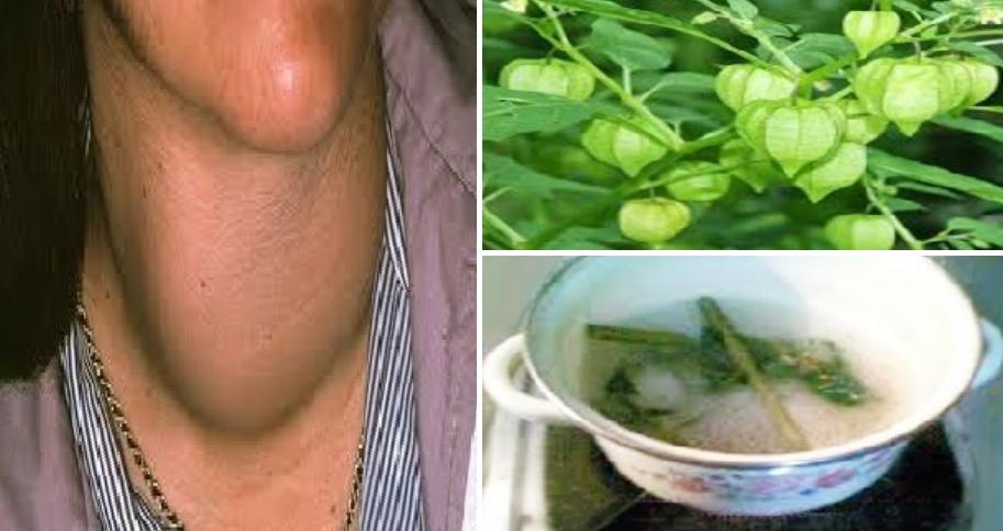 Obat Herbal Bagi Penderita Gondok