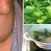 Obat Herbal Bagi Penderita Gondok, Kabar Bagus Untuk Sembuhkan Gondok