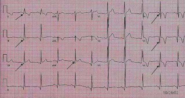 EKG Hyperthropic Cardiomyopathy