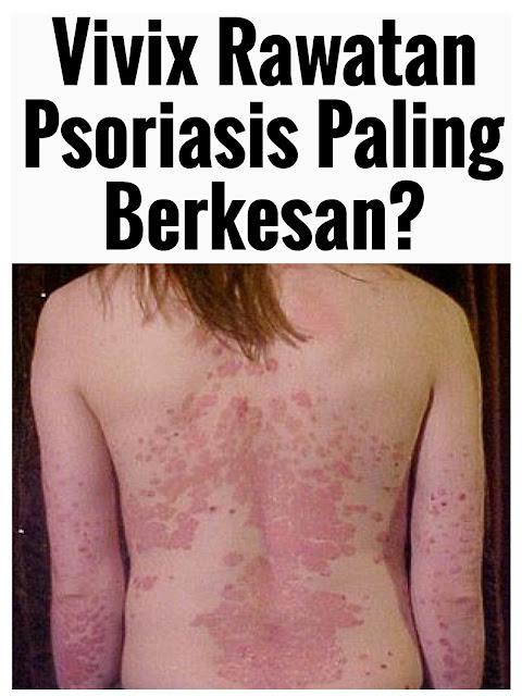 rawatan psoriasis, ubat psoriasis, cara rawat psoriasis, supplements psoriasis, cure psoriasis, ubat psoriasis scalp, ubat psoriasis paling berkesan,