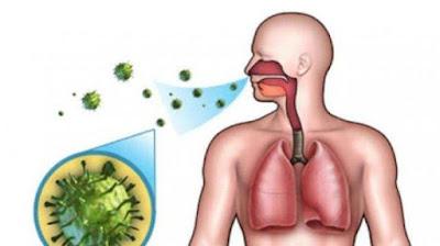 Obat Rumahan untuk Gejala Pneumonia