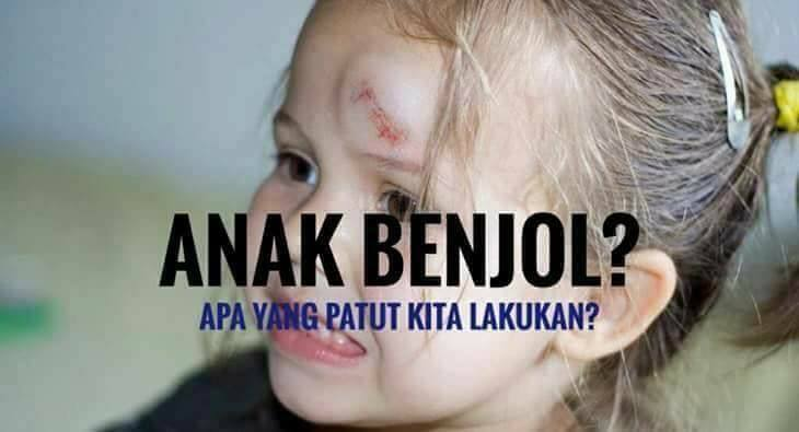 Kepala Anak Benjol Jatuh Terhentak/ Terhantuk.. Apa Yang Perlu Buat?