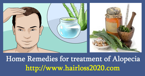 Home Remedies for treatment of Alopecia