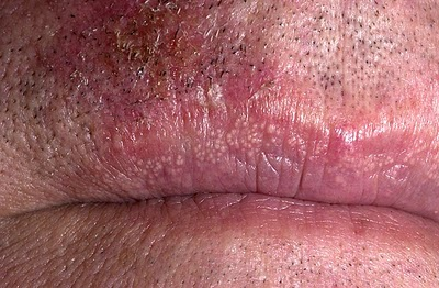 Small, White Bumps on the Lip