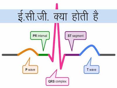 विद्युत हृदय लेख ( इलैक्ट्रोकार्डियोग्राफ) ईसीजी । ECG Kya Hoti Hai