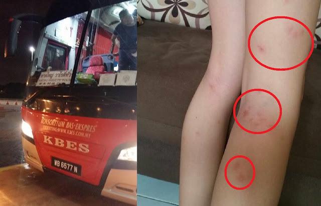Cewek Ini Pulang Naik Bus, Bikin Kaget Sampai di Rumah Kakinya Penuh Tanda Merah ! Tak Disangka Penyebabnya Karena...