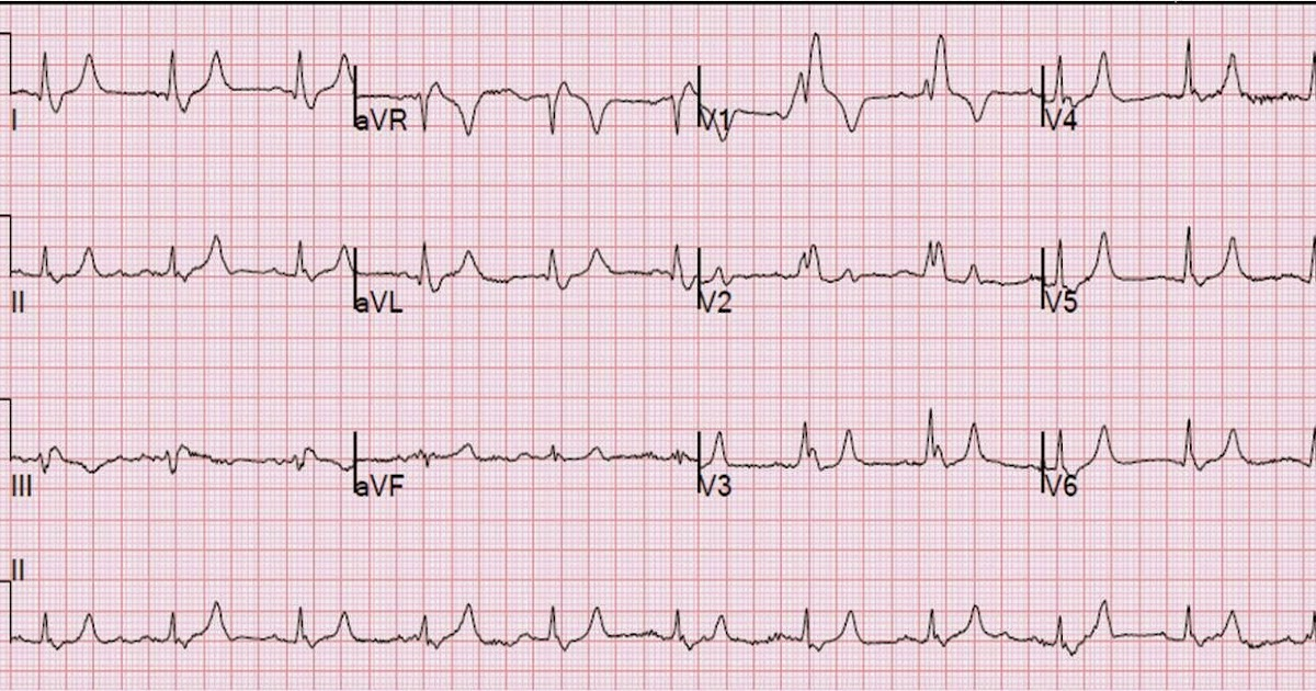 dr smith 39 s ecg blog is this a simple right bundle branch block. Black Bedroom Furniture Sets. Home Design Ideas