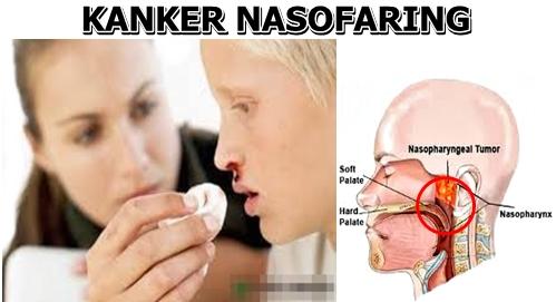 Cara Menyembuhkan Kanker Nasofaring Tanpa Operasi