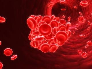 Os coágulos de sangue se formam devido a ação dos fatores da coagulação, podendo ocasionar a trombose