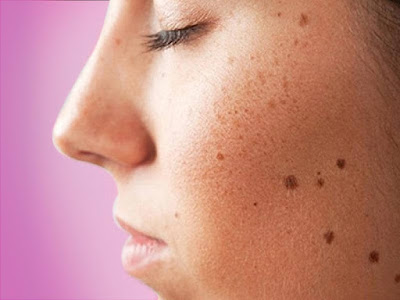How to Get Rid of Dark Spots on the Face