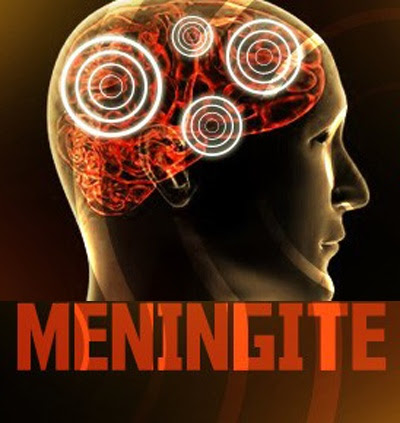 meningite-bacteriana-sequelas