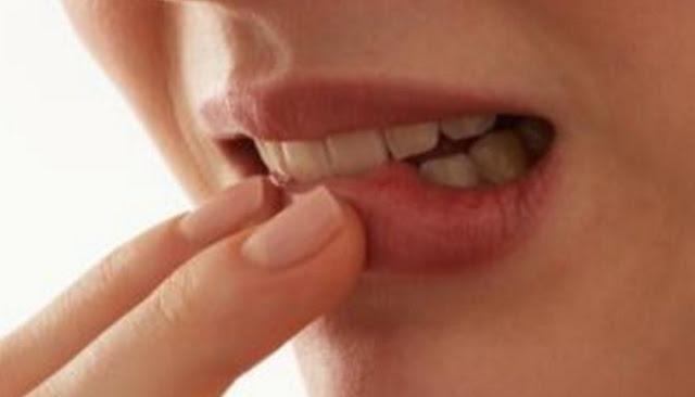 Enam Penyebab Bibir Pecah-Pecah Yang Sebaiknya Kamu Tahu