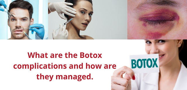 What are the Botox complications and how are they managed.