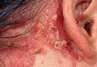 Cara menghilangkan gatal karena eksim di telinga