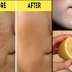 Natural Scar Removal: Minimize Scar Appearance and Helps in Cell Renewal Using Natural Ingredients