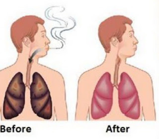 Clean Lungs