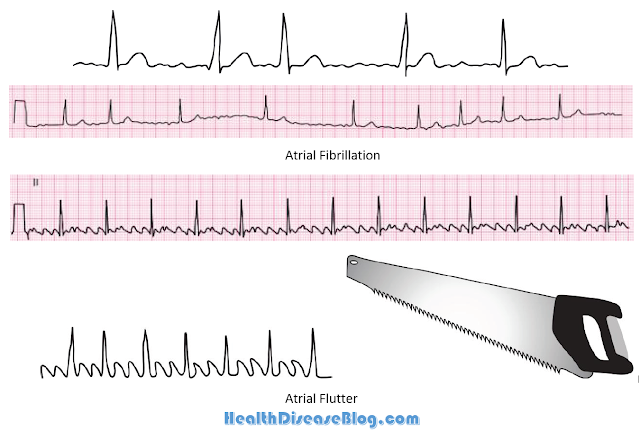 ECG changes in Atrial fibrillation and Atrial flutter