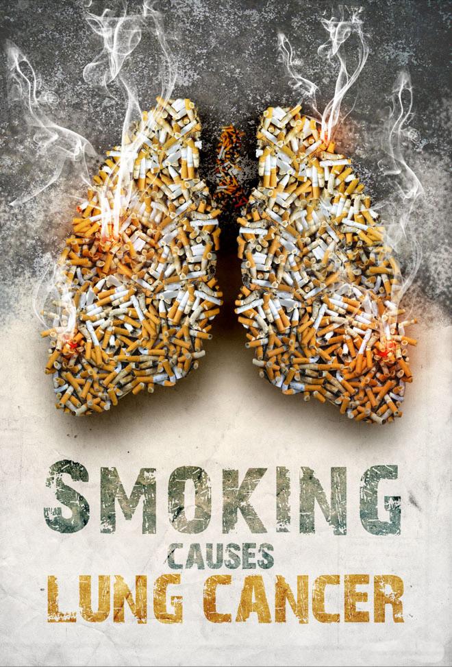 BAhaya merokok dan jangan merokok karena paru-paru