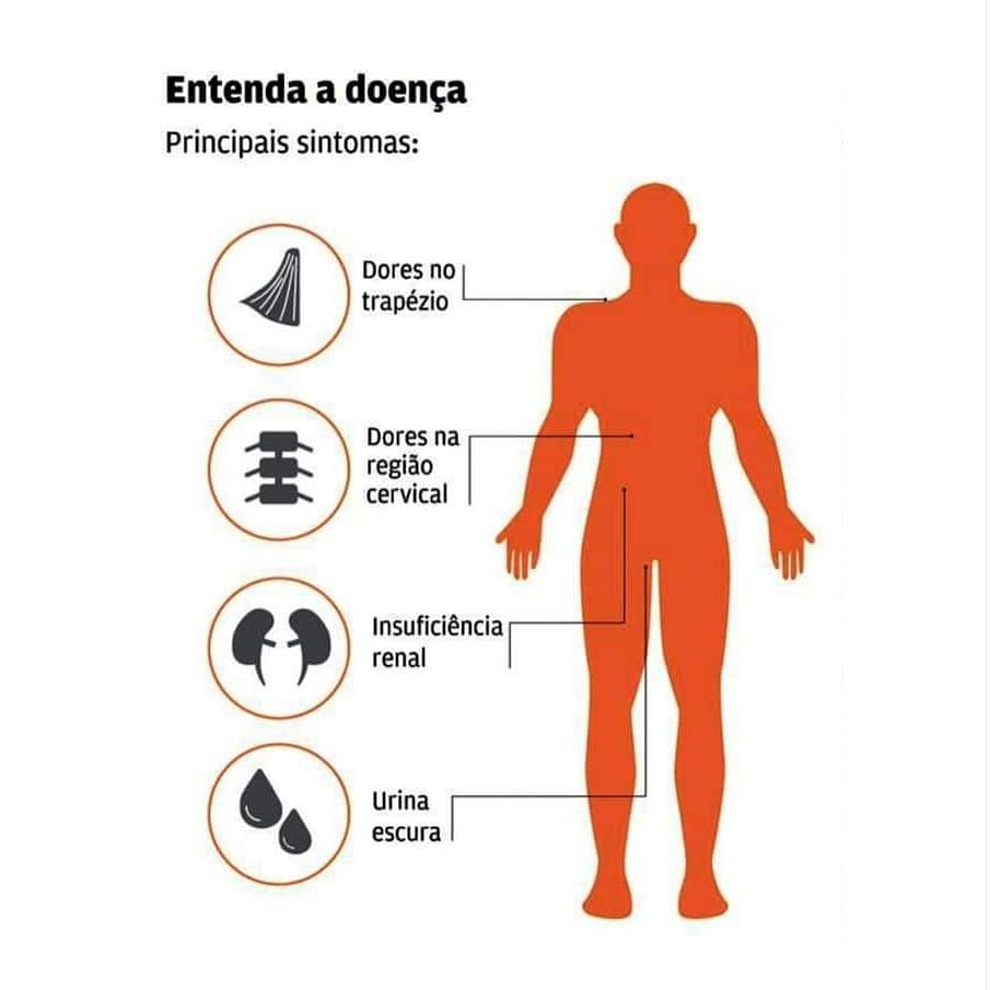 Mototaxista pode ter morrido de doença conhecida por 'urina preta', em Santarém