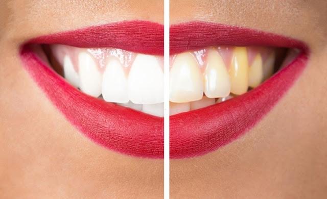 Home Remedies, Teeth Whitening, Teeth, Oral Health, Oral Hygiene, Teeth, Health