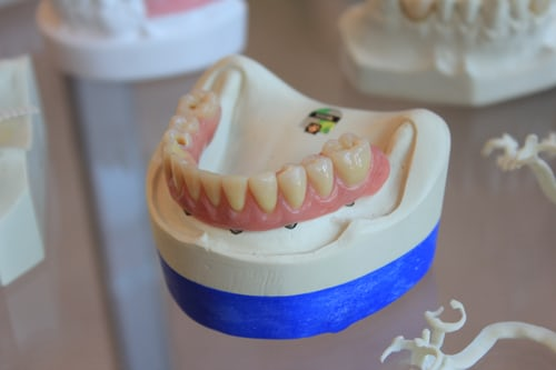 Dental Implants: Things You Should Need to Know Before Getting One