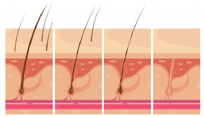 7 Cara Mengatasi kebotakan atau rambut rontok pada laki-laki dan wanita