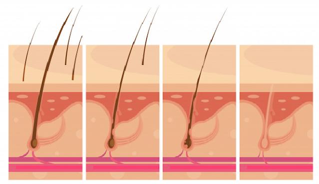7 Cara menyembuhkan kebotakan rambut