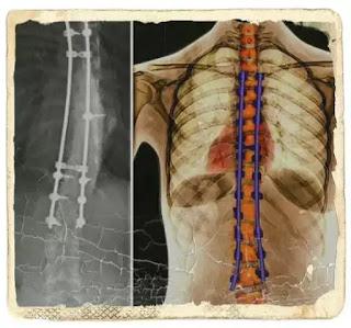 cele mai cunoscute deficiente ale coloanei vertebrale