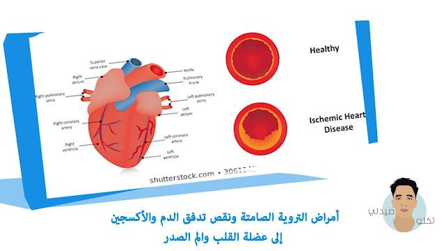 أمراض التروية الصامتة ونقص تدفق الدم والأكسجين إلى عضلة القلب والم الصدر