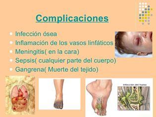 Celulitis: Sintomas, Causas, Tratamiento Y Prevención