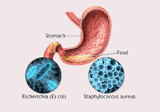 Food Poisoning Prevention