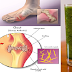Amazing Recipe to Remove Uric Acid from Joints!