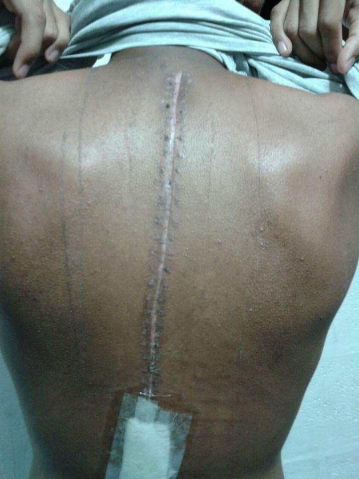 This reportedly happened to a boy after carrying heavy schoolbag