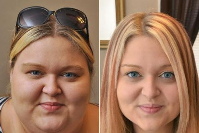 Ilyen egy női arc 50 kiló fogyás után: megdöbbentőek az..