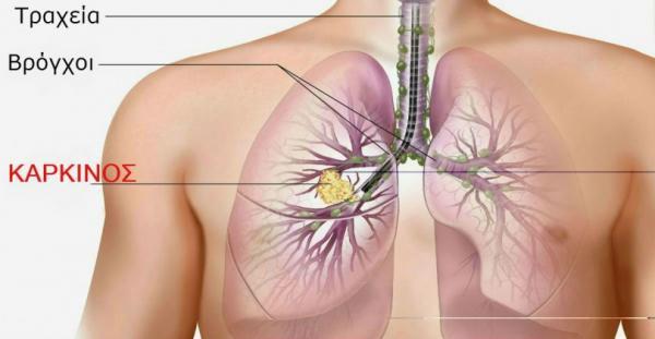 Καπνίζετε; Τουλάχιστον Αποτοξινωθείτε… Αυτές Είναι Οι 7 Τροφές Που Καθαρίζουν Τους Πνεύμονες