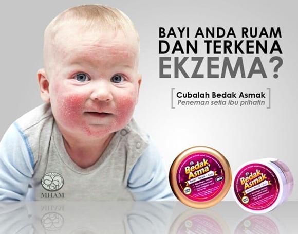Ekzema Pada Bayi