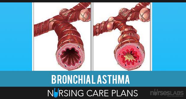Bronchial Asthma Nursing Care Plans   Nursing Care