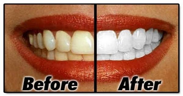 Cara Memutihkan Gigi Yang Sudah Kuning Secara Alami