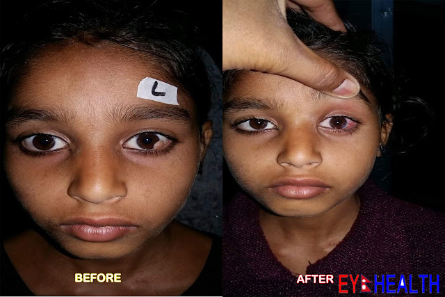 Before and Ater photo of limbal dermoid surgery