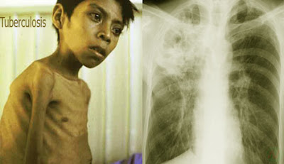 Tuberculosis,যক্ষ্মারোগ